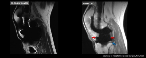 Note visualization of bone interface around the femur (red arrow), and posterior tibial osteolysis (blue arrow) on the MAVRIC SL image (right). MAVRIC demonstrates clear outline of polyethylene (red arrows) and posterior tibial osteolysis (blue arrow). Disclaimers: These images were generated using the MAVRIC SL software feature and are representative of the quality of images that users should expect to generate. However, GE Healthcare is not always able to confirm whether the images are of MR Conditional implants or whether scanning was in accordance with the implant's instructions for use. MAVRIC SL should only be used with MR Conditional implants and within the MR conditions specified for those implants. (Photo: Business Wire)