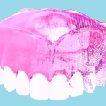 DENTCA's 3-Dimensional Denture (Photo: Business Wire)