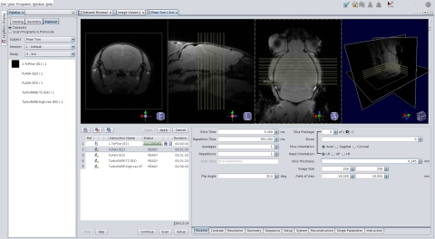 Bruker's Preclinical imaging software ParaVision 6 (Graphic: Business Wire)
