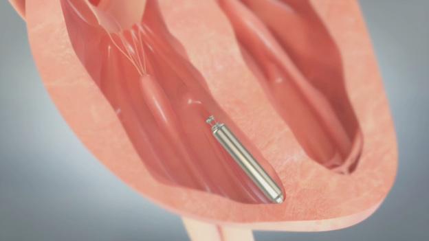Animation demonstrating Nanostim(TM) leadless pacemaker implant procedure.