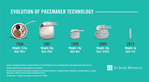 Timeline demonstrating the evolution of pacing technology from 1958 to 2013. (Graphic: Business Wire)