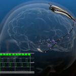 The RNS(R) System has been granted premarket approval (PMA) from the FDA for the treatment of adults with partial onset seizures that have not been controlled with two or more antiepileptic drugs. The RNS System is a novel, implantable therapeutic device that delivers responsive neurostimulation, an advanced technology designed to detect abnormal electrical activity in the brain and respond by delivering imperceptible levels of electrical stimulation to normalize brain activity before an individual experiences seizures.