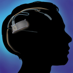 The RNS(R) System has been granted premarket approval (PMA) from the FDA for the treatment of adults with partial onset seizures that have not been controlled with two or more antiepileptic drugs. The RNS System is a novel, implantable therapeutic device that delivers responsive neurostimulation, an advanced technology designed to detect abnormal electrical activity in the brain and respond by delivering imperceptible levels of electrical stimulation to normalize brain activity before an individual experiences seizures. (Graphic: Business Wire)