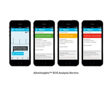 AliveInsights™ ECG Analysis Service (Photo: Business Wire)