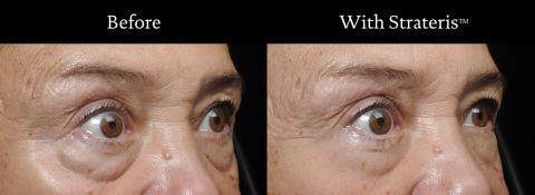 Patient demonstrating the results of Strateris, a new polymer film technology, invented by Living Proof scientists and world-class dermatologists to reshape the appearance of lax skin starting in one hour of application. (Photo: Business Wire)