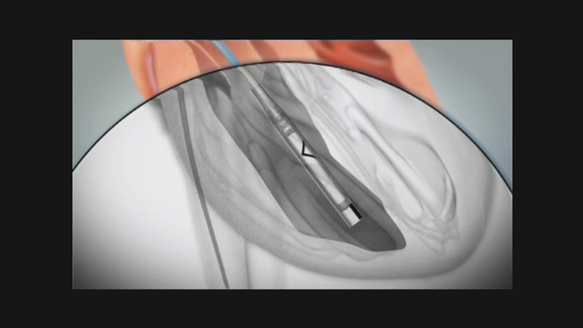 Animation of Nanostim leadless pacemaker and implant procedure.