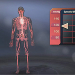Neurogenic Orthostatic Hypotension: A medical animation video that explains this condition.