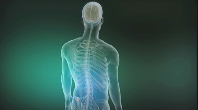 Animation depicting spinal cord stimulation with Burst Technology using St. Jude Medical's Prodigy(TM) Chronic Pain System. Video provided by St. Jude Medical.