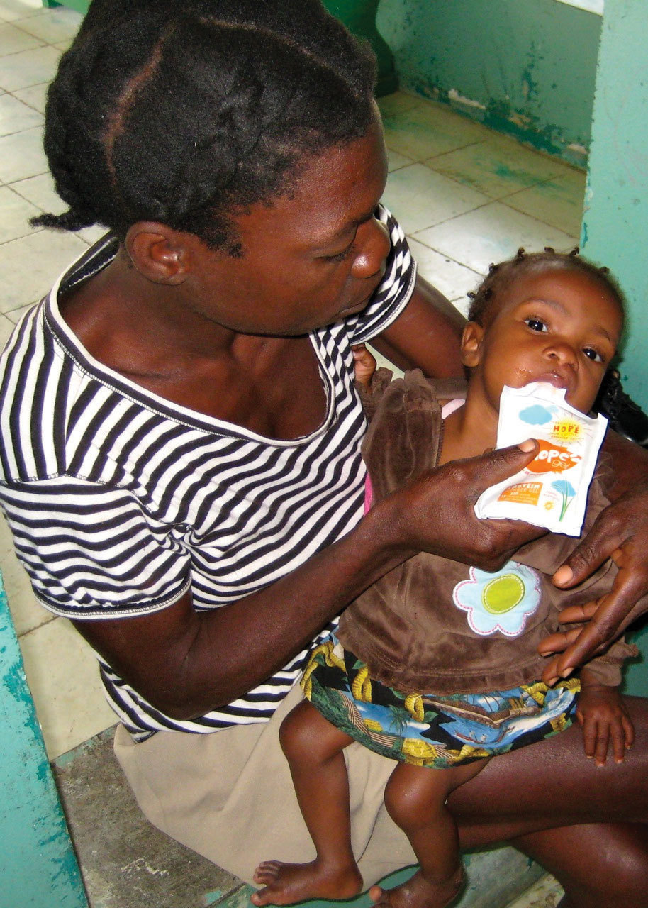 A Haitian child consumes HopeGel, a nutrient-dense protein gel. (Photo: Business Wire)