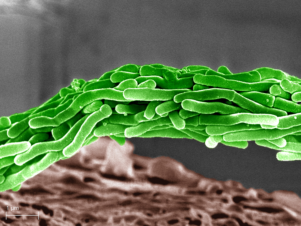Dyed magnification of tuberculosis bacteria (Photo: Business Wire)