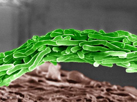 染色された結核菌(電子顕微鏡写真)大塚S.A 提供