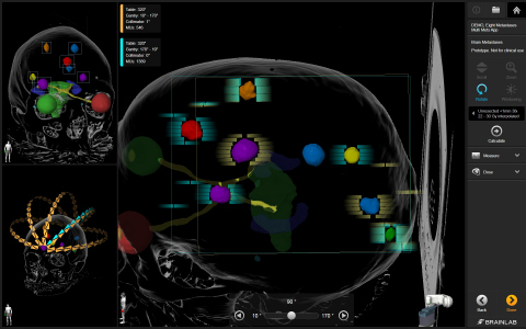 Automatic Brain Metastases Planning Element, the latest software innovation by Brainlab, provides new treatment possibilities for larger tumors and higher numbers of metastases. (Photo: Business Wire)