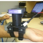 """The new glucose- and dehydration-monitoring """"watch,"""" strapped to a subject's wrist and connected to a computer for readout. Credit: Biomedical Optics Express."""
