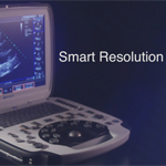Terason uSmart 3300 Ultrasound System is a fusion of Smart Technology and Smart Resolution Imaging to deliver innovative and intuitive systems with elite performance.