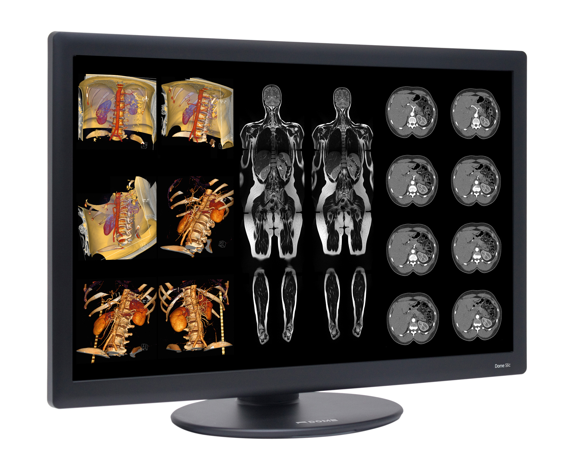 Dome S6c Widescreen 6MP Radiology Display (Photo: Business Wire)
