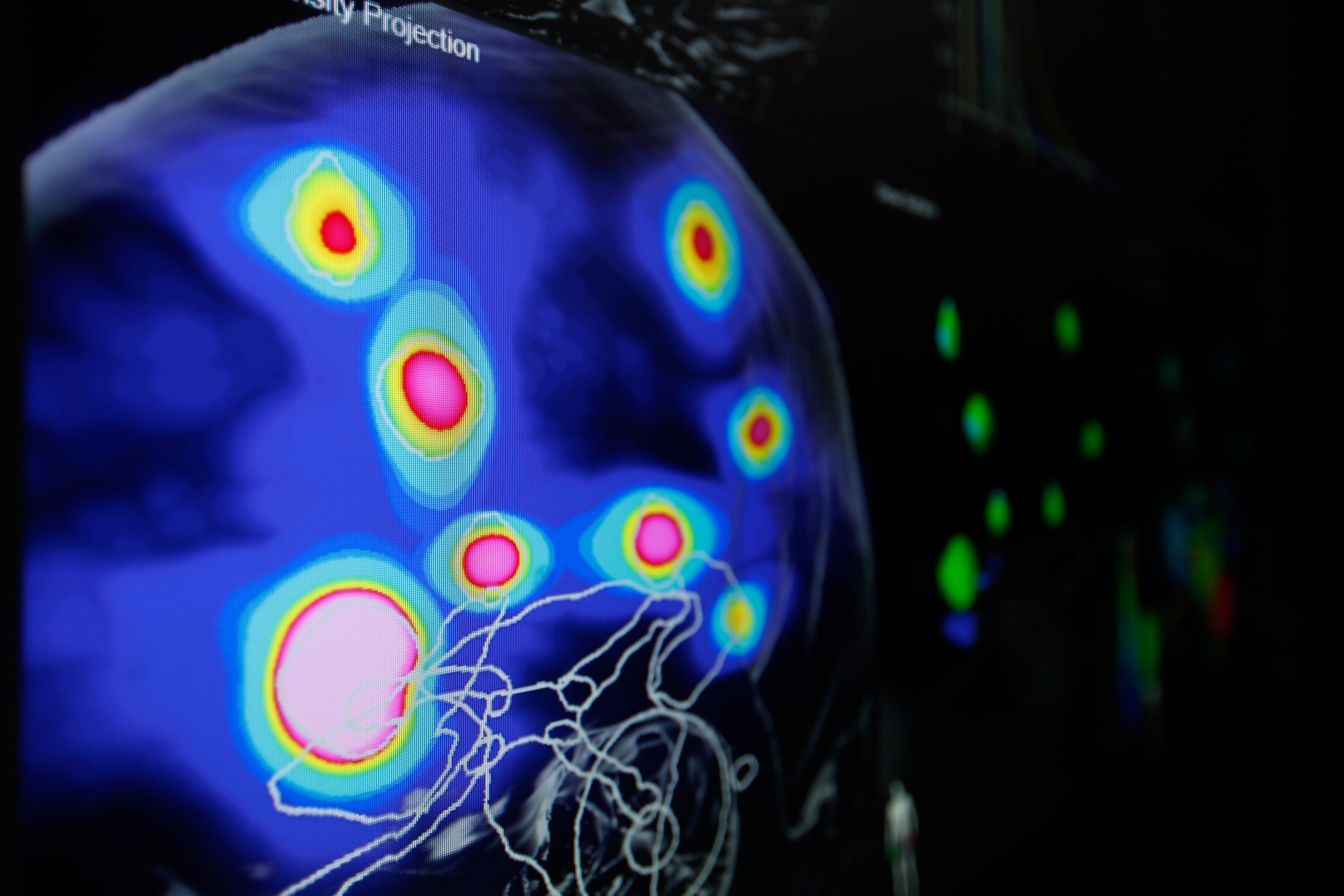 Automatic Brain Metastases Planning Software by Brainlab (Photo: Business Wire)