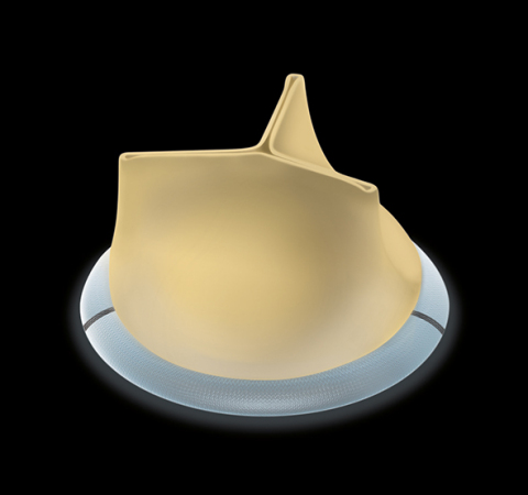 SORIN GROUP's CROWN PRT HEART VALVE (Photo: Business Wire)