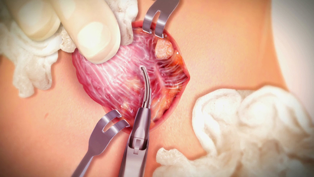 Surgeon Testimonial Video - Harmonic Focus+