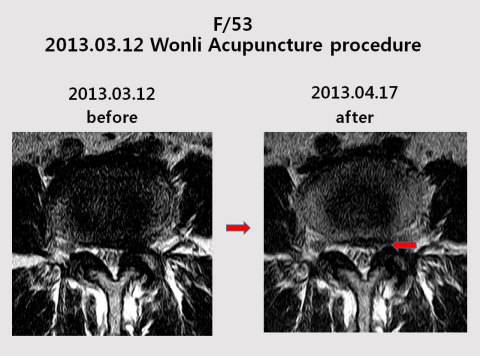 Wonli Acupuncture, the new technic invented by Geon-mok Lee at Dr. Lee RATOC, began to receive attention from academia as a new treatment method for Lumbar spinal stenosis. More than 50% of the patients' ODI score was improved over 50%. (Graphic: Business Wire)