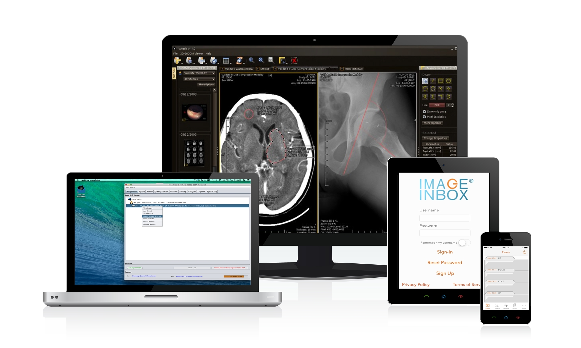 ImageInbox® from NexGenic is an app which makes it possible for patients to personally control and store essential medical images and diagnostic reports, and securely deliver them on demand via their iPhone, iPad, laptop or desktop to healthcare providers. All of this is as easy as sending an email. (Photo: Business Wire)