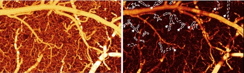 A side-by-side comparison of blood flow in a healthy mouse brain vs. a mouse brain exposed to cocaine. The image on the left (a) shows the mouse brain blood vessels before cocaine. The image on the right (b) shows the blood vessels after, revealing that many of the vessels are now darker, which signifies lower blood flow. FOV:1.2 x 2.0 x1.0 mm3 Credit: Biomedical Optics Express.