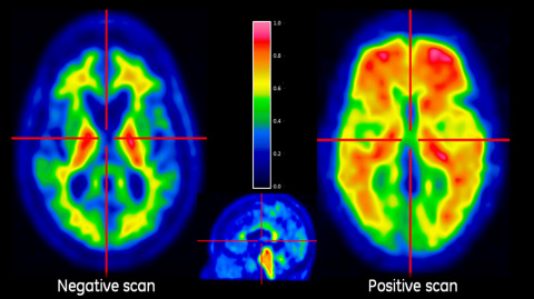 VIZAMYL™ PET cases showing examples of negative flutemetamol (18F) PET scan (left) and positive scan ...