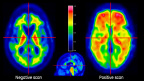 VIZAMYL™ PET cases showing examples of negative flutemetamol (18F) PET scan (left) and positive scan (right). Images from VIZAMYL, European Summary of Product Characteristics. Reference: http://www.ema.europa.eu/ema Date: August 2014