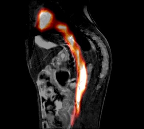 3D MPI image overlay on MRI reference image. Courtesy University Medical Center Hamburg-Eppendorf (UKE), Germany.