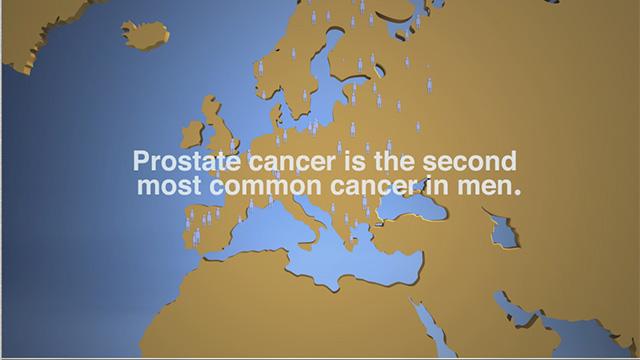 PROSTATE CANCER DISEASE ANIMATION