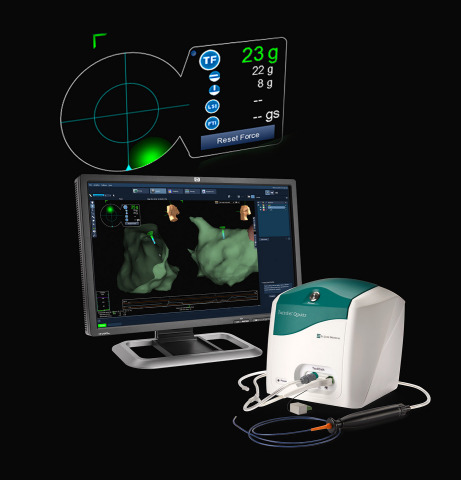 Image of the TactiCath Quartz irrigated ablation catheter with EnSite Contact Force Module. (Photo:  ...