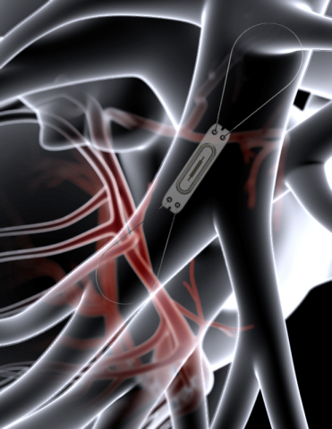 The CardioMEMS HF System uses a miniaturized, wireless monitoring sensor that is implanted in the pulmonary artery. (Graphic: Business Wire)
