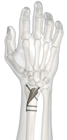 Conventus DRS is a unique, self-expanding orthopedic device for treating distal radius fractures. (Photo: Business Wire)