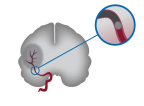 Stroke caused by blood clot. (Graphic: Business Wire)