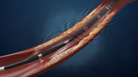 Shockwave's Lithoplasty(TM) System, an innovative treatment for patients with peripheral artery disease (PAD). (Photo: Business Wire)