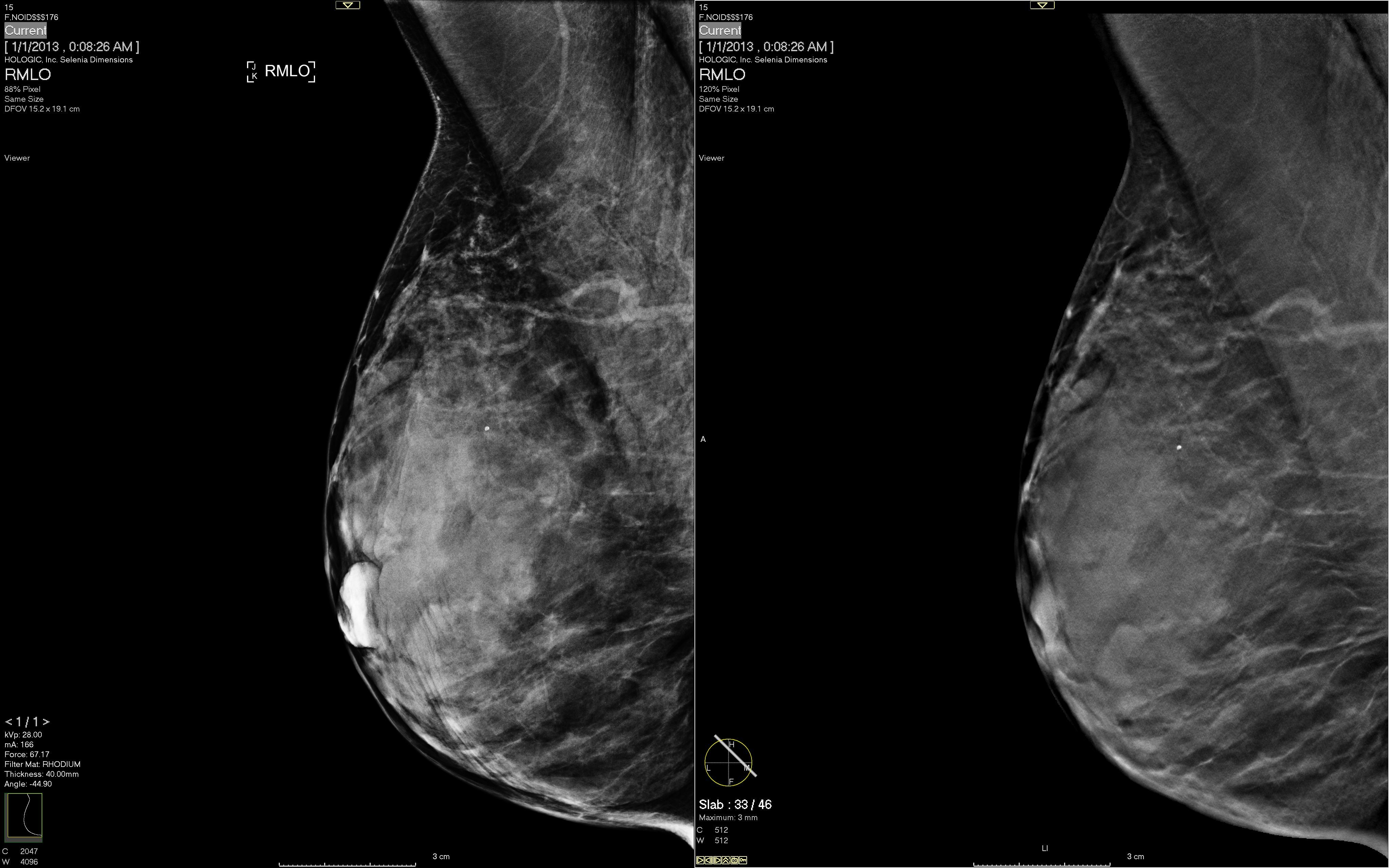 breast tomosynthesis courses 2014