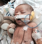 When he was just five days old, Jackson Lane underwent a 13-hour operation that would save his life. (Photo: Business Wire)