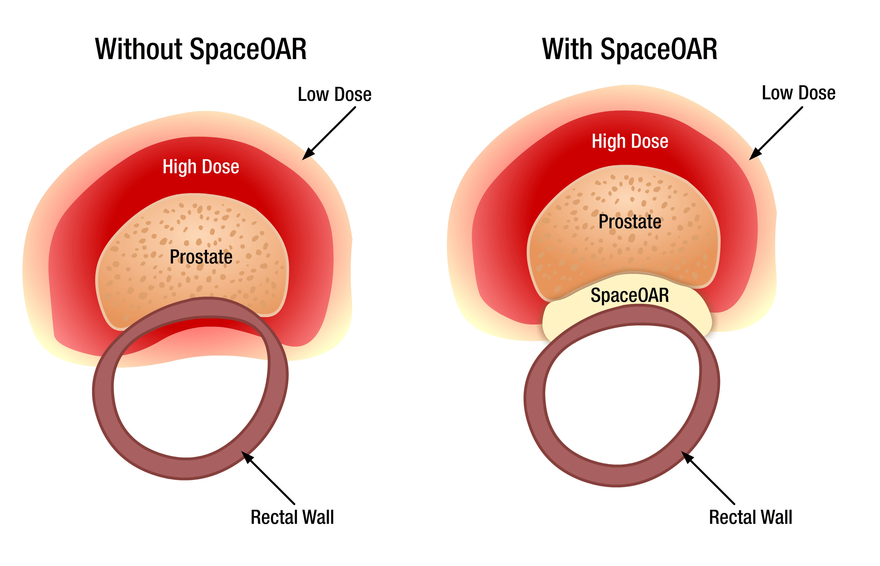 Augmenix Announces FDA Clearance of SpaceOAR System (Graphic: Business Wire)