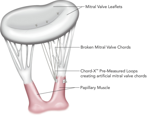 Chord-X(TM) Pre-Measured Loops for mitral chordal replacement (Graphic: Business Wire)