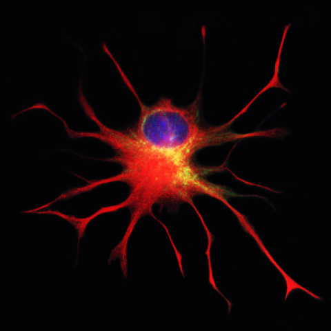 Stained Q-Cell® in culture, during differentiation, with yellow showing early progenitor characteristics, and red highlighting a protein found later in astrocytes, the cell type thought to be beneficial for ALS patients; DNA in the nucleus is highlighted in blue. (Photo: Business Wire)
