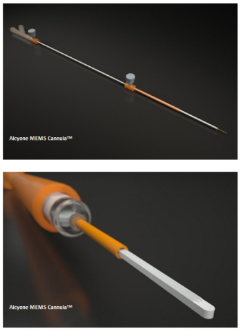 Alcyone MEMS Cannula™ (Graphic: Business Wire)