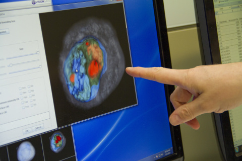 VisionGate's LuCED test generates 3D images of cells in a patient's sample for the very first time, allowing for earlier detection of lung cancer when treatment is most effective. (Photo: Business Wire)