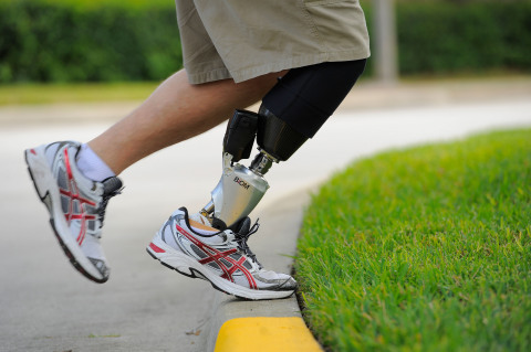 The BiOM® Ankle, the company's flagship product, is the only lower-limb prosthesis with powered propulsion for enhanced mobility. Only the BiOM Ankle provides power that emulates lost muscle function, control that mimics normal ankle movement and stability that automatically adjusts to any surface. (Photo: Business Wire)