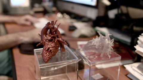 Mia's 3D printed heart model was created with a Stratasys 3D Printer, enhancing surgical preparedness, reducing complications and decreasing operating time for the surgical team. (Photo: Stratasys)