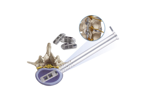 joimax EndoLIF On-Cage implant (Graphic: Business Wire)
