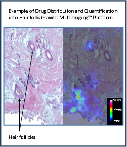 Example of Drug Distribution and Quantification into Hair follicles with Multimaging™ Platform (Photo:Imabiotech)