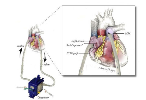 Diagram demonstrating the paracorporeal oxygenator system that provides a bypass route for blood to flow and be oxygenated through the filter. (Graphic: Business Wire)