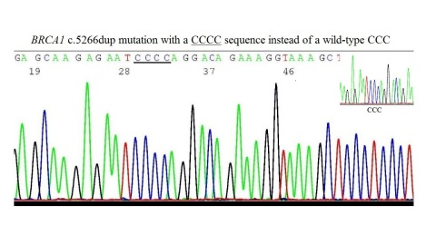 BRCA1 c.5266dup mutation with a CCCC sequence instead of a wild-type CCC (Graphic: Business Wire)