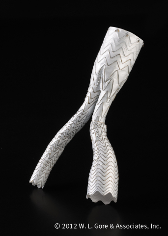 The GORE EXCLUDER AAA Endoprosthesis is a minimally invasive treatment option for patients with abdominal aortic aneurysms (AAA), designed with active infrarenal fixation and engineered to provide migration resistance. The device also features exceptional limb performance due to the unique combination of ePTFE graft material and fully supported, nested, nitinol stent design to prevent kinking and occlusion. A presentation at the 2015 Vascular Annual Meeting featured a meta-analysis of several endovascular aneurysm repair (EVAR) devices that showed the GORE EXCLUDER Device limbs have the lowest incidence of occlusion at both one and three years. (Photo: Business Wire)