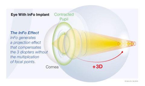 Lancement d'une nouvelle lentille intraoculaire – InFo, SAV-IOL, Suisse (Graphique : SAV-IOL SA 2016)