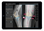 TraumaCad new automatic knee functionality aims to save time for orthopedic surgeons (Photo: Business Wire)
